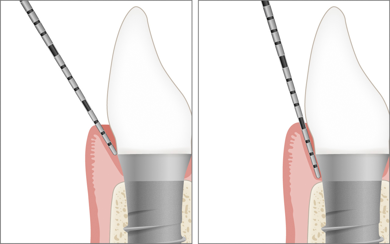 Probing deep healthy implant