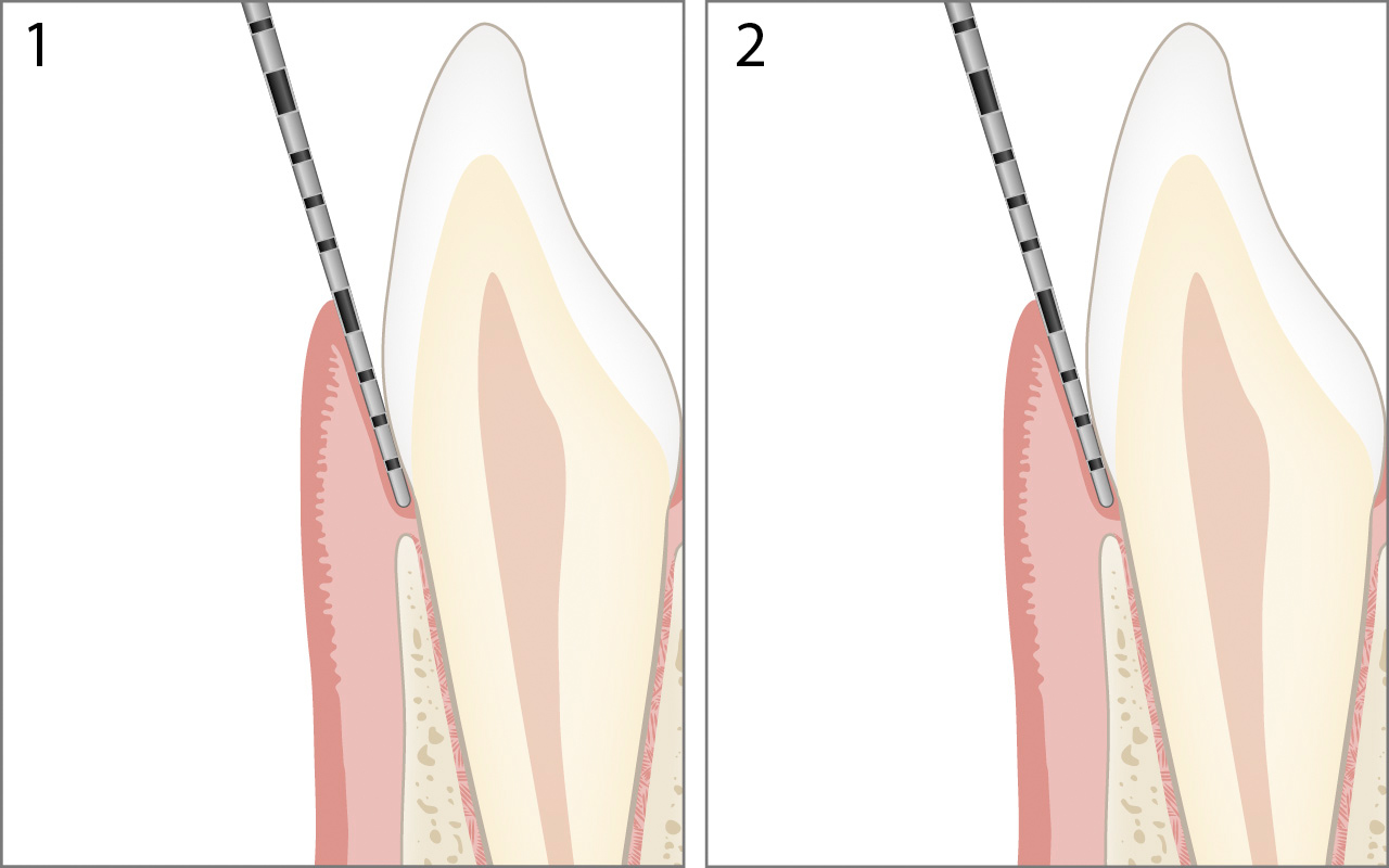 Probing gingival overgrowth
