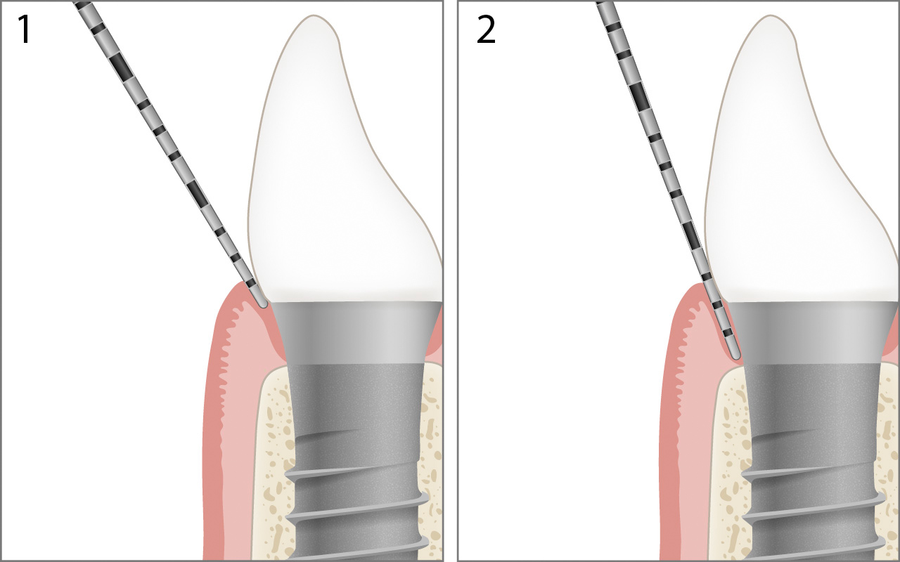 Probing healthy implant