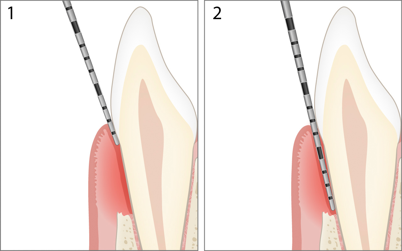 Probing periodontal pocket